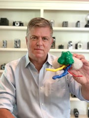 Tim Wainwright holds a plastic model of his kidney and the cancerous tumor that Dr. Ahmed Ghazi removed. Ghazi practiced for the surgery by using scans of Wainwright's kidney to make a lifelike, gelatinous model.
