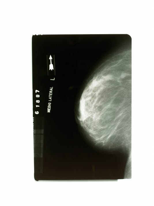 mammogram2-thinkstock.JPG