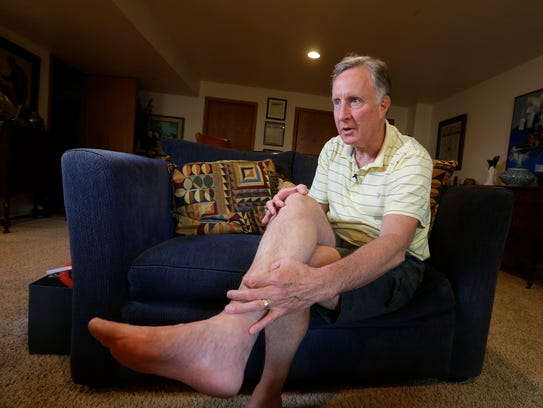 Bob Johnston's right leg, which doctors had considered