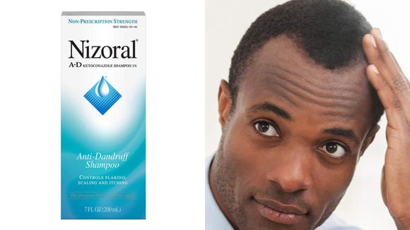 Help your scaly scalp with the Nizoral A-D Anti-Dandruff Shampoo.