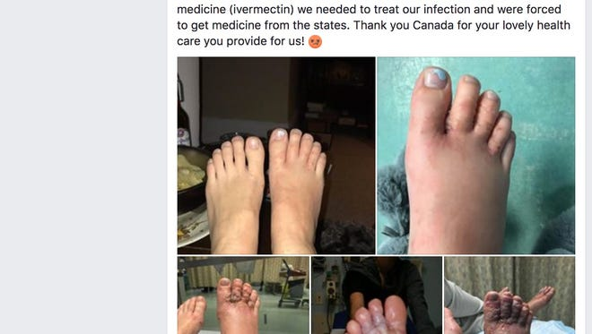 A Canadian couple said they contracted parasitic hookworms in their feet after walking barefoot on a Dominican Republic beach.