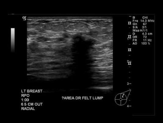 BUR20151006Mammogram4