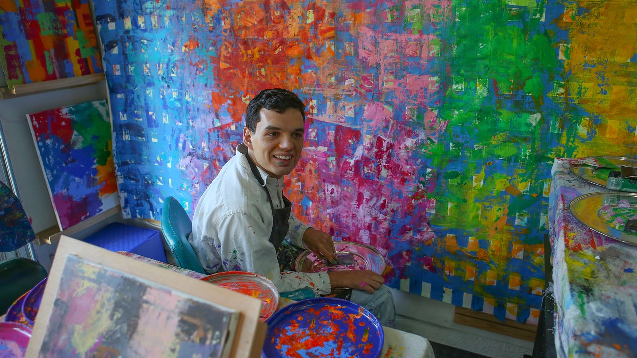 With a tumor at 15 months, Nicholas Kontaxis, now 21 creates vibrant and explosive works of contemporary art.