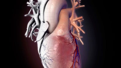 Human heart with wire frame, appearing like frozen mechanical heart on black background