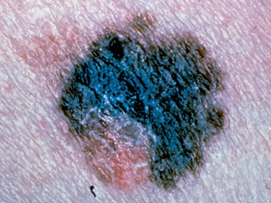 This is melanoma. It spreads and can spread quickly. Any skin spot that is dark colored, irregular or changing should be checked.