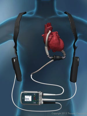 A photo of the ventricular assist device, both internally and externally.