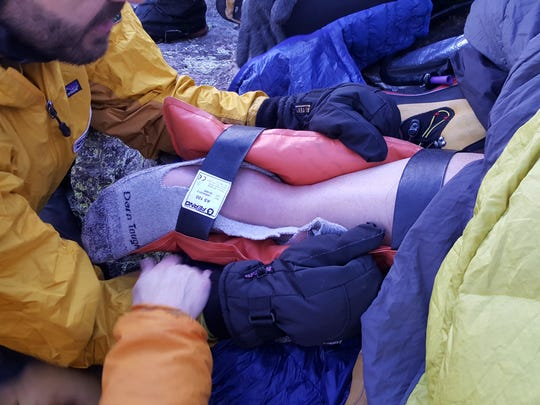 Rescuers work to keep Alan Arnette's right foot warm and in a splint after his fall on Twin Sisters.