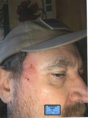 Scott Greene alleged his mother, Patricia, hit him
