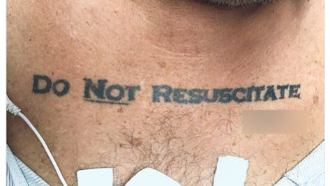 """A 70-year-old man with a """"Do Not Resuscitate"""" tattoo was rushed, unconscious, to an emergency room in Miami, Florida, earlier this year."""