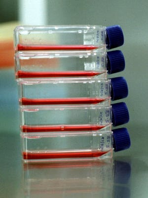 Embryonic stem cells in laboratory bottles.