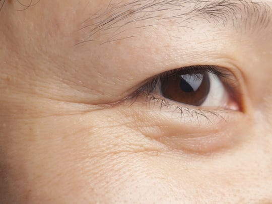 Eye wrinkles? There are a few treatments that might help.