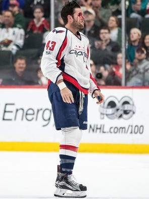 March 28: Capitals forward Tom Wilson leaves the ice