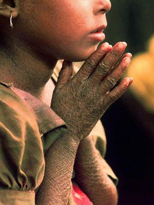 In this file photo, an Indian girl, who suffers from leprosy on her hands and back, stares out from her home in one of Calcutta's slums in September 1997.