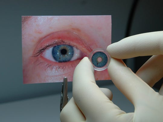 A Human Optics artificial iris, similar to the prosthetic used in Dane Norem's surgery, is designed to match the patient's healthy eye.