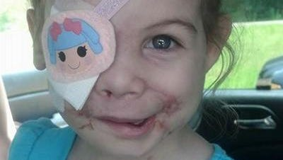 Fried chicken chain KFC says two different investigations have not found any evidence that an employee asked a 3-year-old Victoria Wilcher and her family to leave because injuries she suffered in a pit bull mauling disturbed customers.