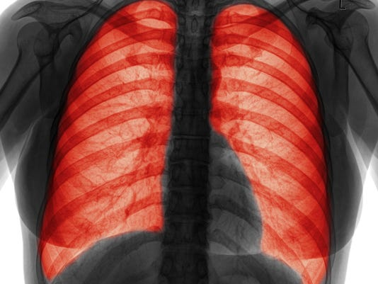 Lung infection-B&W