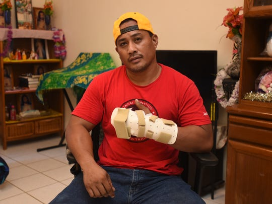 Filip Sykap, 39, shows his injured hand at his Harmon