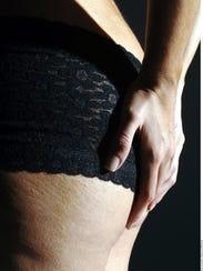 Cuando la piel pierde espesor, elasticidad y adopta