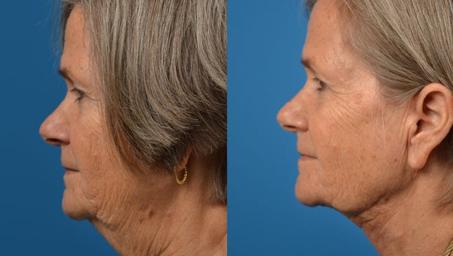 """A practicing facial plastic surgeon for 20 years, Dr. Ross Clevens is the creator of the innovative """"Laser-Assisted Weekend Necklift,"""" a procedure he developed to give his patients optimal results with minimal downtime."""