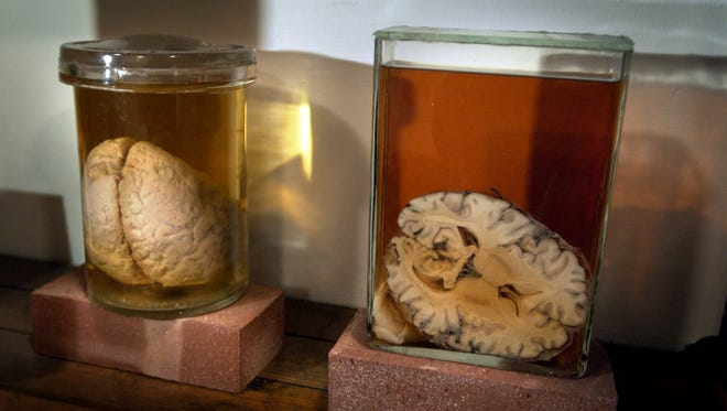 Brains in jars can be found at the Indiana Medical History Museum, but it's not gross, it's medical science.