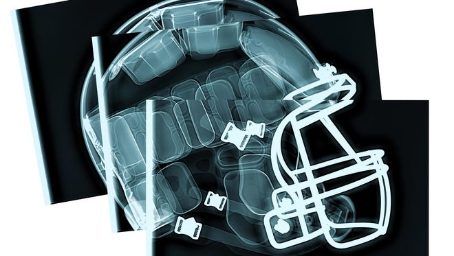 North Carolina's proposed House Bill 116 would require parents, coaches and anyone associated with student athletics to be given information on sudden cardiac arrest; heat stroke and heat exhaustion; and concussions.