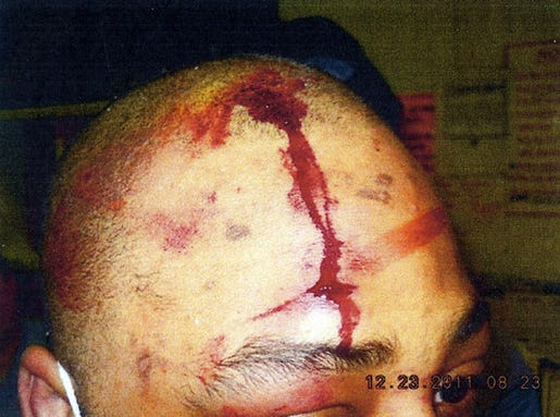 Lindsey-head-wound-from-Dec-2011-incident.jpg