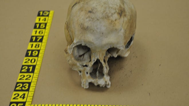 A human skull was found Tuesday in Brick.