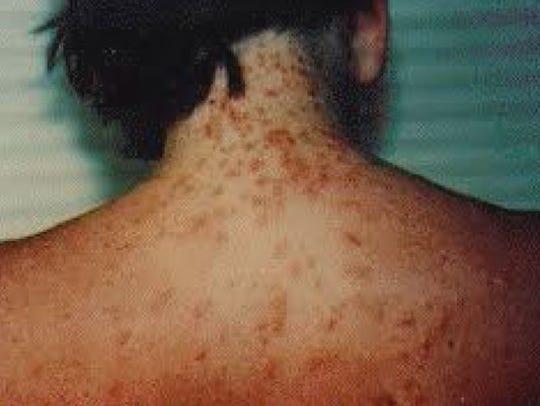 A file photo of sea lice on the Gulf Coast.