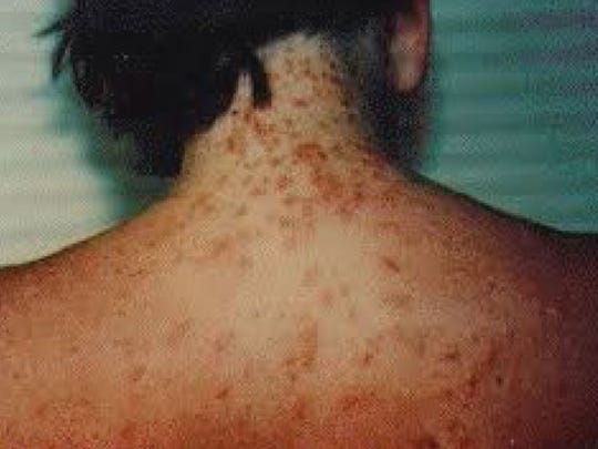 Sea lice are popping up all over Gulf Coast beaches.