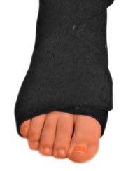 Lymphedema foot compression garment.