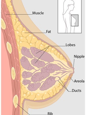 Breast cancer can begin in different parts of the breast. A breast is made up of three main parts: lobules, ducts, and connective tissue.