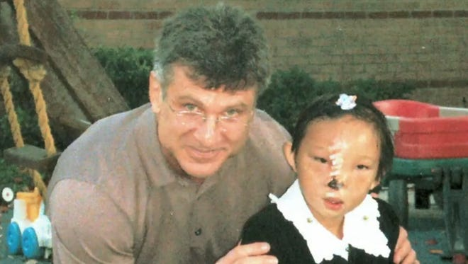 Li Ying was born in a small Chinese village with a severe craniofacial cleft. Dr. Craig Hobar brought Li Ying and her mother to Dallas for the first of a series of life-changing surgeries.