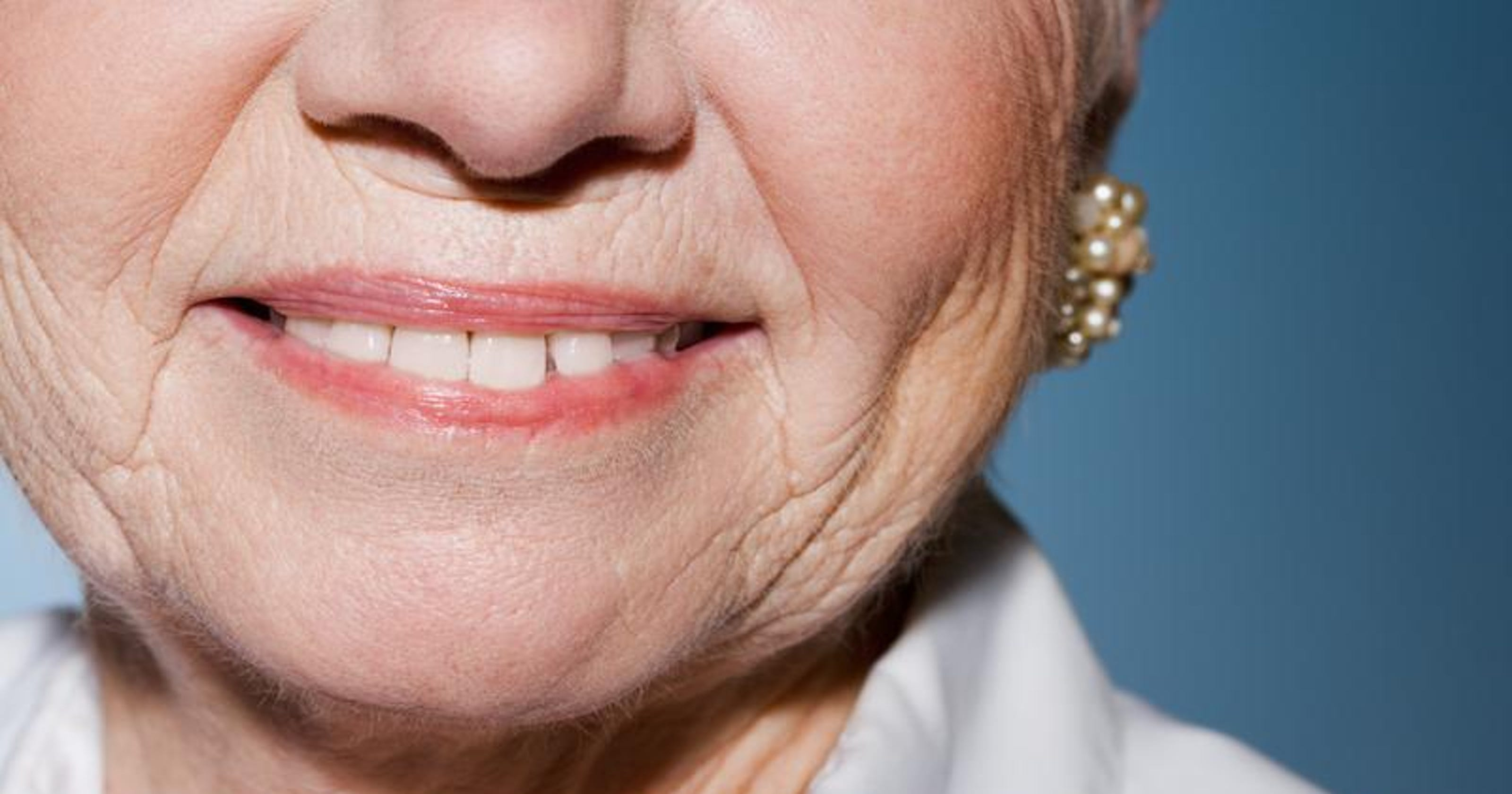 Beauty Tips: Your facial wrinkles are dynamic or static