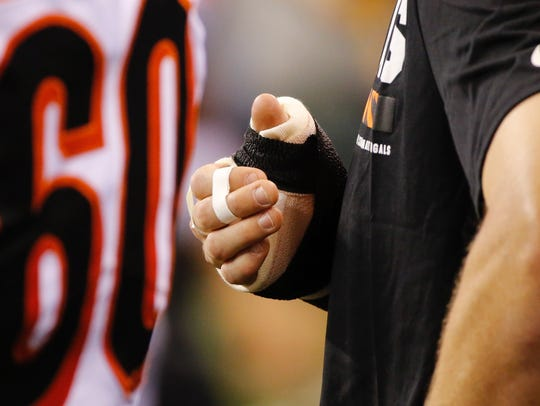 Bengals quarterback Jeff Driskel injured the thumb