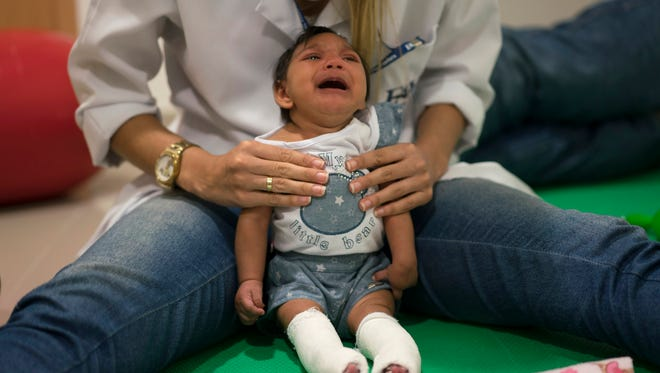 In this Feb. 4, 2016 photo, Luana Vitoria, who was born with microcephaly, cries during a physical therapy session at the Altino Ventura Foundation, a treatment center that provides free health care in Recife, Brazil.