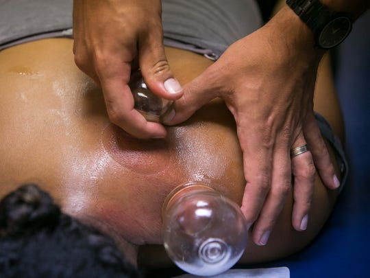 Dr. Kris Kondrad performs a cupping therapy session of Ashley Henderson at 1st State Health & Wellness in Wilmington.