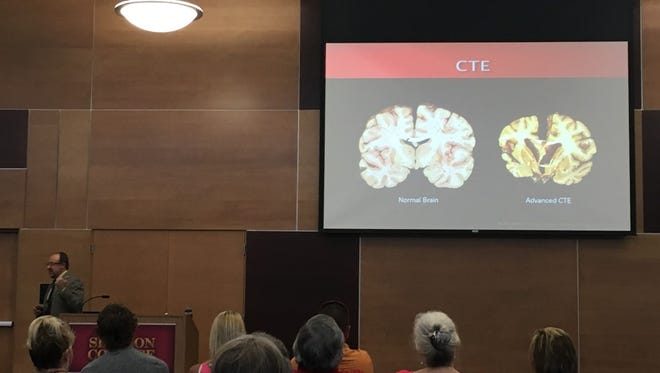 Mike Hadden, a professor at Simpson College, presented at the CTE forum Sunday. The picture shows the difference between a healthy brain (left) with a brain of a person with CTE (right).