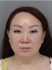 Chunye Jiao, 49