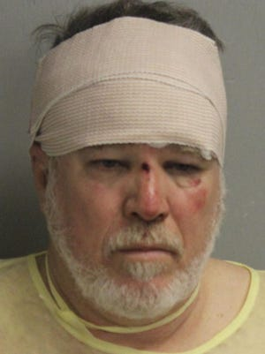 James Pascal Gilbert is shown in this booking photo after his treatment for injuries in a wreck.