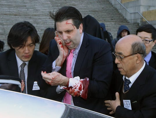 AP SOUTH KOREA AMBASSADOR HURT I KOR