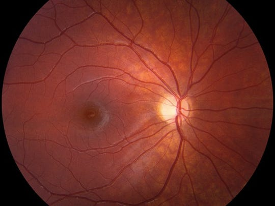 An image of Alexis' optic nerve. One side of the nerve is more pale than the other side which is more pale than normal. With optic atrophy, the nerve gets more white.