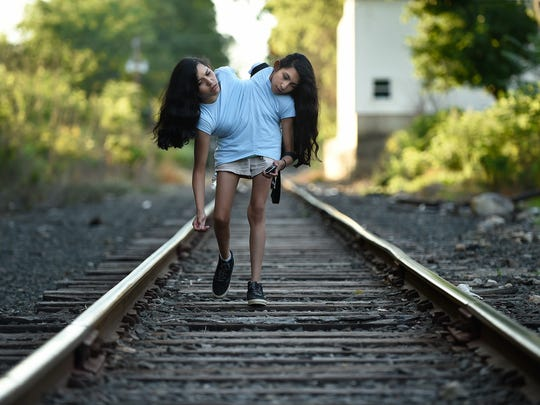 Conjoined twins Carmen and Lupita Andrade, 16, walk along a train track behind the home of their seamstress where they just had a fitting for a dress on Sept. 26, 2016 in New Milford, Conn. The seamstress sews together two dresses, shirts or jackets for the twins' upper bodies which are joined at the torso. They were killing time waiting for their mother who was talking to the seamstress after the fitting.