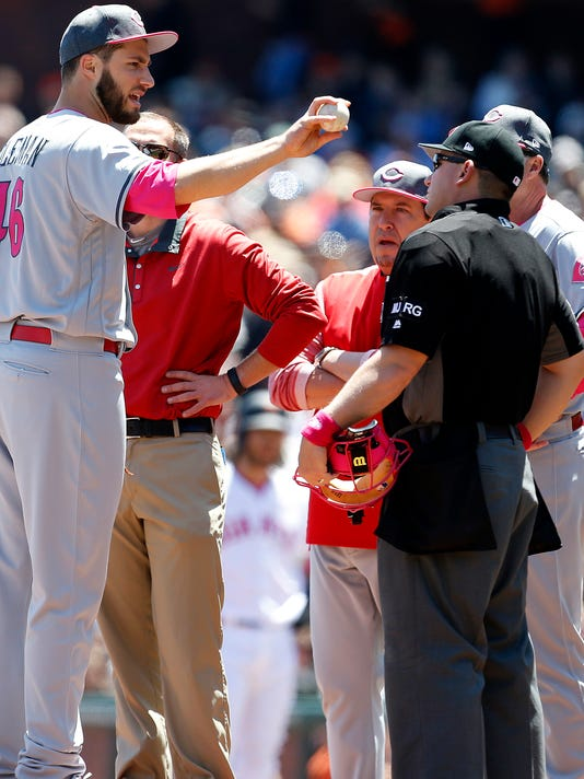 Cincinnati Reds pitcher Tim Adleman is checked by team trainer on the mound during the first inning against the San Francisco Giants of a baseball game in San Francisco, Sunday, May 14, 2017. (AP Photo/ Tony Avelar)