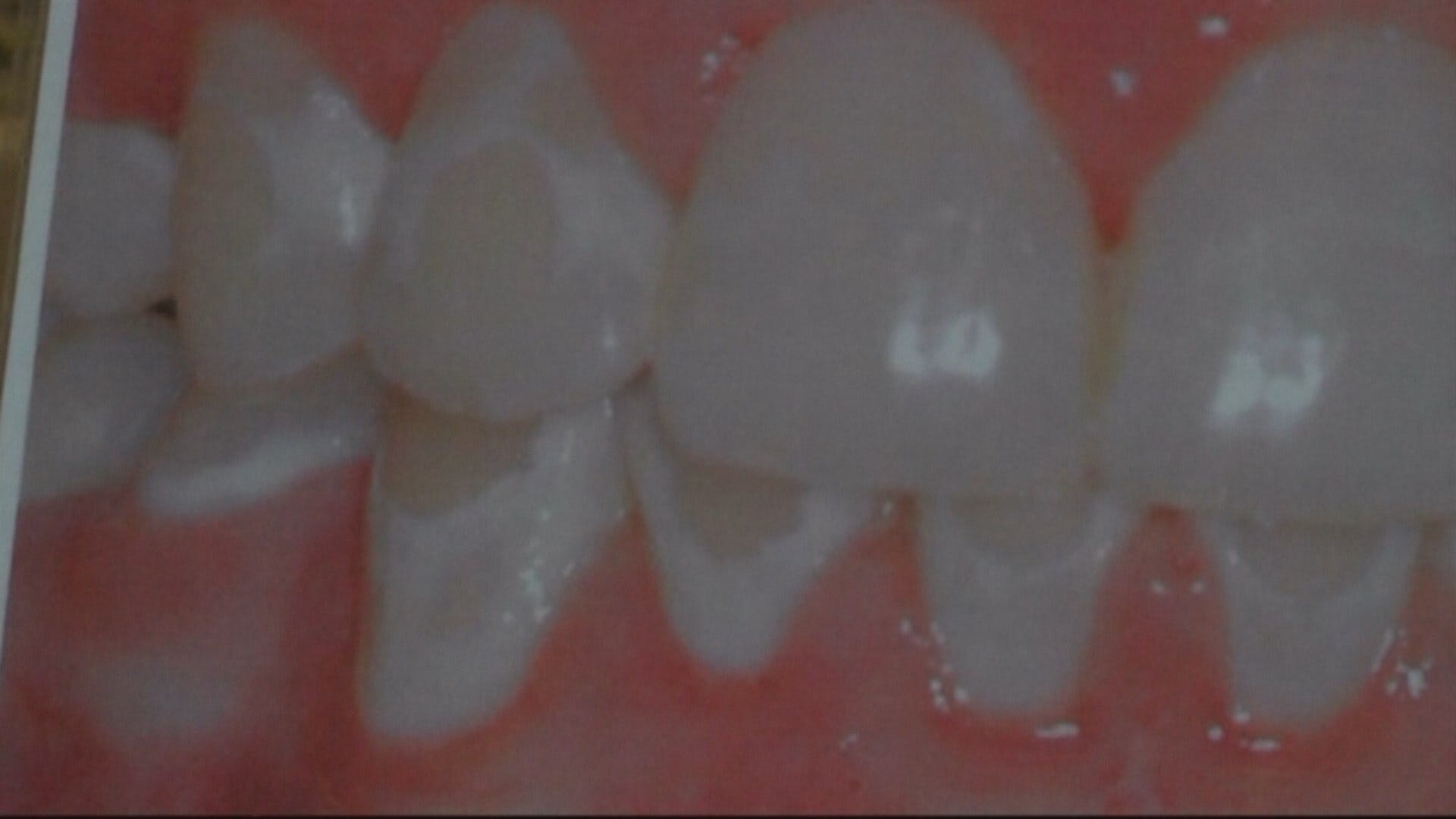 food tooth after can how long i wisdom extraction solid eat