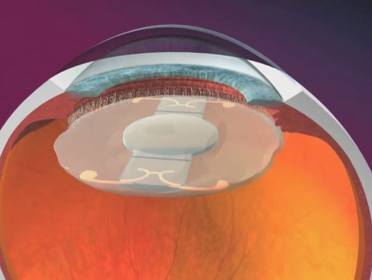cataract vision how to see
