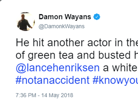 """""""He hit another actor in the mouth with a bottle of"""