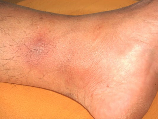 Mystery bruise disappears
