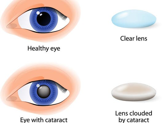Focus On Eyes Types Of Implants For Cataract Surgery