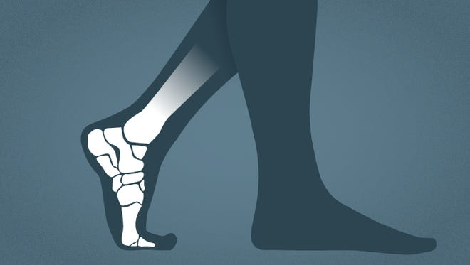 Have a little room in your shoes? Insoles, or orthotics, may be right for you.