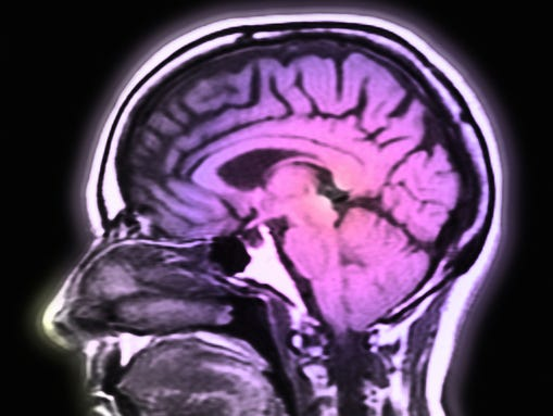 MS Brain